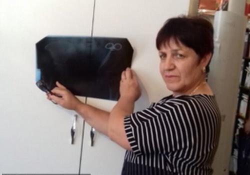 Bà Ezeta Gobeeva cùng hình ảnh phim chụp X-quang khoang bụng của mình