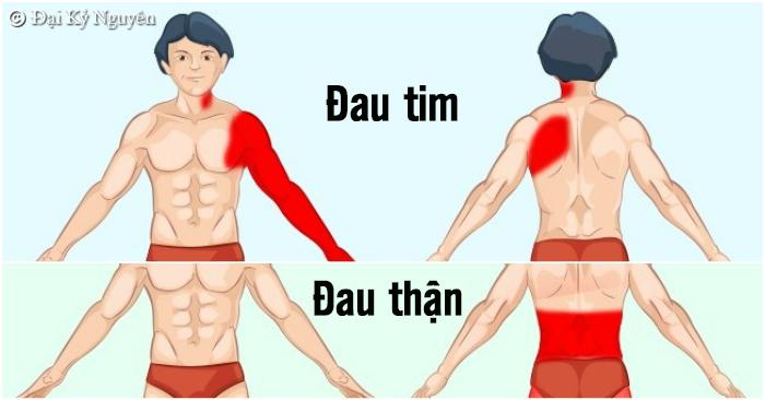 Học các xác định đúng vị trí cơn đau bất thường để phát hiện bệnh chính xác