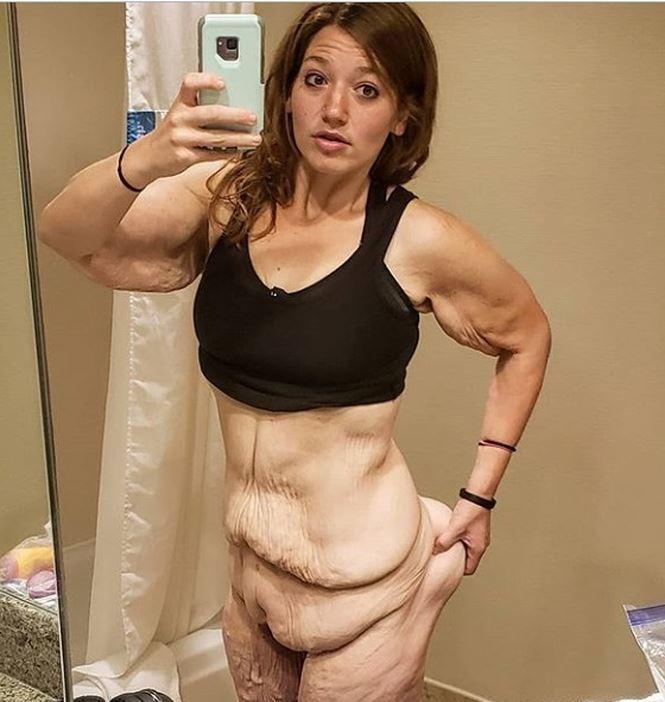Rùng mình trước hình ảnh của cô gái trẻ sau khi giảm 141kg trong 1,5 năm