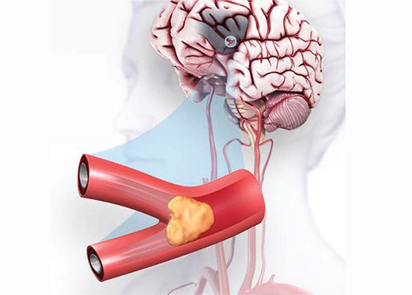 Cùng tìm hiểu các loại thuốc điều trị chứng đột quỵ não