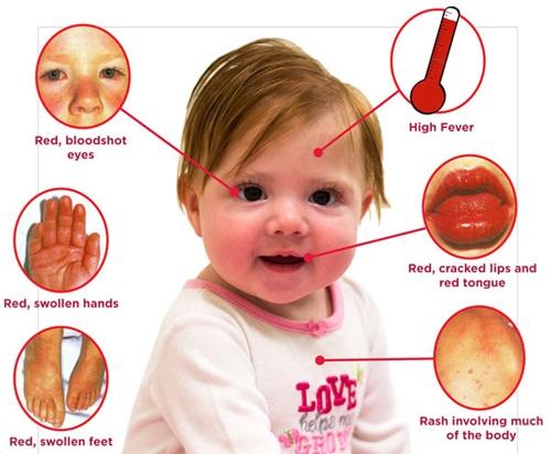 Bệnh Kawasaki khi biến chứng sẽ gây suy tim và nhồi máu cơ tim ở trẻ em