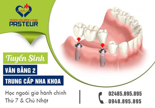 Tuyển sinh Văn bằng 2 Trung cấp Kỹ thuật phục hình răng năm 2018