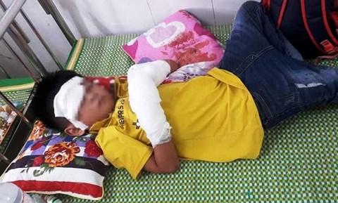 Cảnh báo: Bé 7 tuổi dập nát tay, tổn thương thị giác vì dùng điện thoại lúc sạc