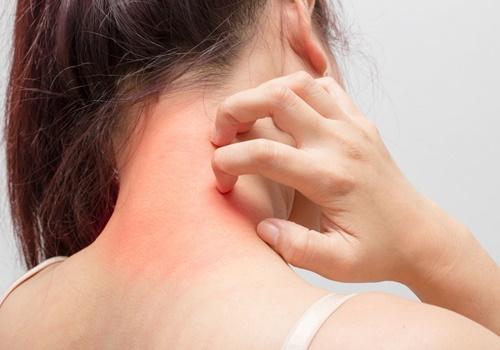 Một số triệu chứng thông thường để nhận biết dị ứng thuốc