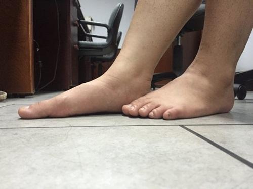 """Y học chứng minh người có bàn chân đầy đặn sẽ không """"sướng""""?"""