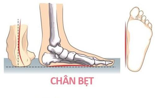 Bàn chân bẹt ngày càng phổ biến trên thực tế