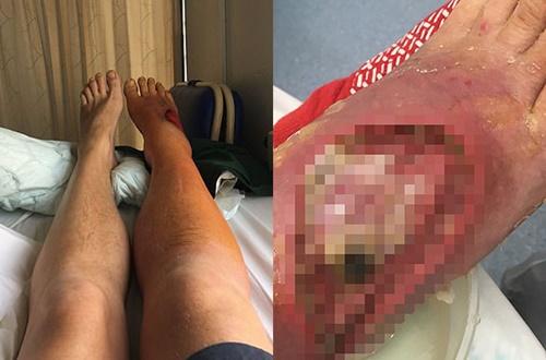 Kỳ lạ: Nam bệnh nhân hồi sinh nhờ….400 con giòi ăn vết thương ở chân