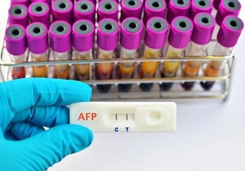 Một xét nghiệm phát hiện 16 bệnh ung thư: Bệnh viện đưa ra gói tầm soát nói gì?