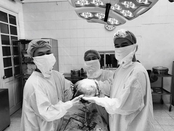 HOT: Bệnh viện Phụ sản HN mổ u xơ tử cung to bằng thai nhi 9 tháng