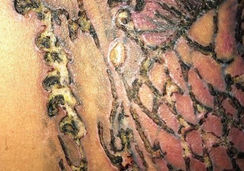 Xoá hình xăm: Nam thanh niên 29 tuổi bị nhiễm trùng da nghiêm trọng