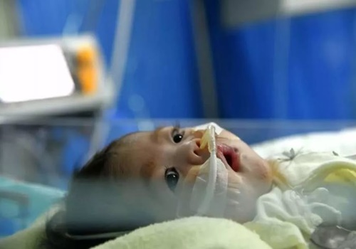 Bé gái 2 tuổi bị suy cơ tim nghiêm trọng, có thể tử vong bất kỳ lúc nào