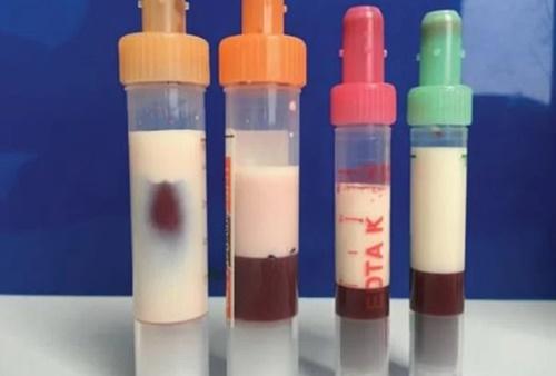 Sốc: Nam bệnh nhân 39 tuổi có máu màu trắng sữa do mỡ máu quá nhiều