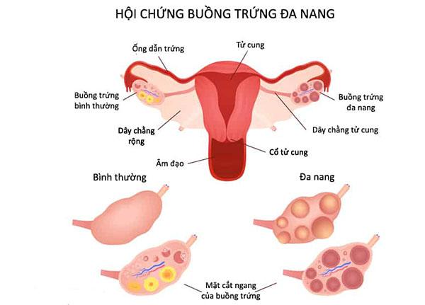 Do sự thay đổi hormone khác nhau dẫn đến hội chứng buồng trứng đa nang
