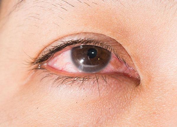 Viêm loét giác mạc do nấm là một bệnh nhiễm trùng giác mạc