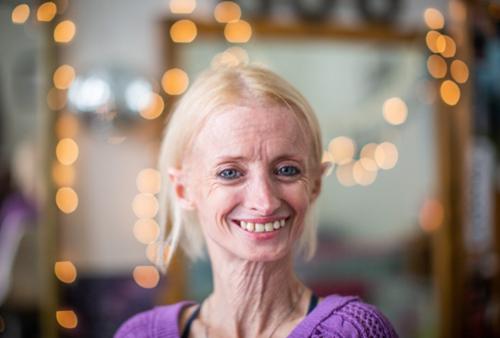 Người phụ nữ mắc hội chứng lão hóa sớm làm cho ngoại hình của cô già như bà cụ