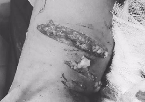 Bé trai ở Phú Thọ nhập viện do chó nuôi thả rông tấn công