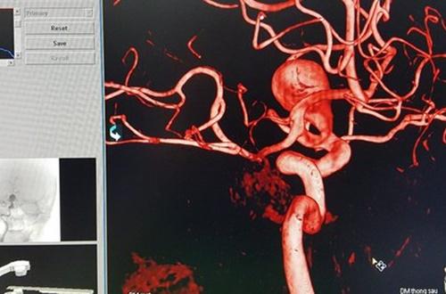 Huế: Cứu sống bệnh nhân bị phình động mạch não lớn nhất trong lịch sử