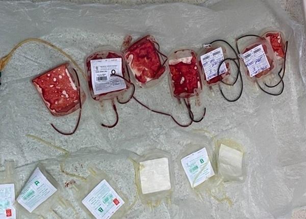 Nhiều bác sĩ và nhân viên y tế sẵn sàng hiến máu cho sản phụ nguy kịch